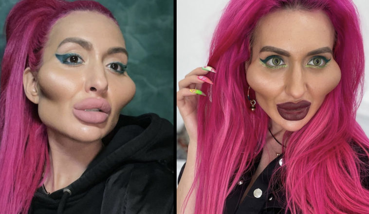Woman with world's biggest cheeks is planning more surgery.